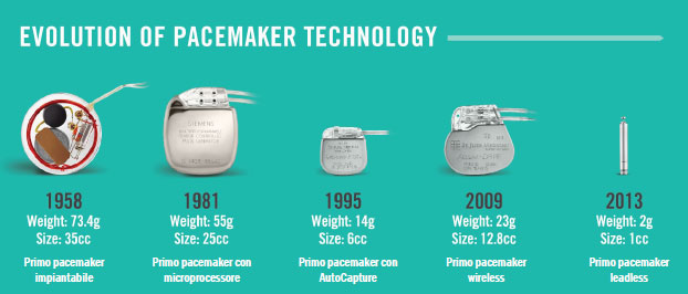 pacemaker batteria