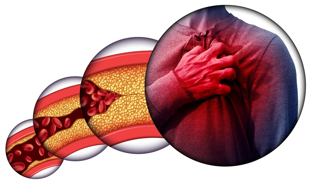 Infarto prima causa: colesterolo cattivo